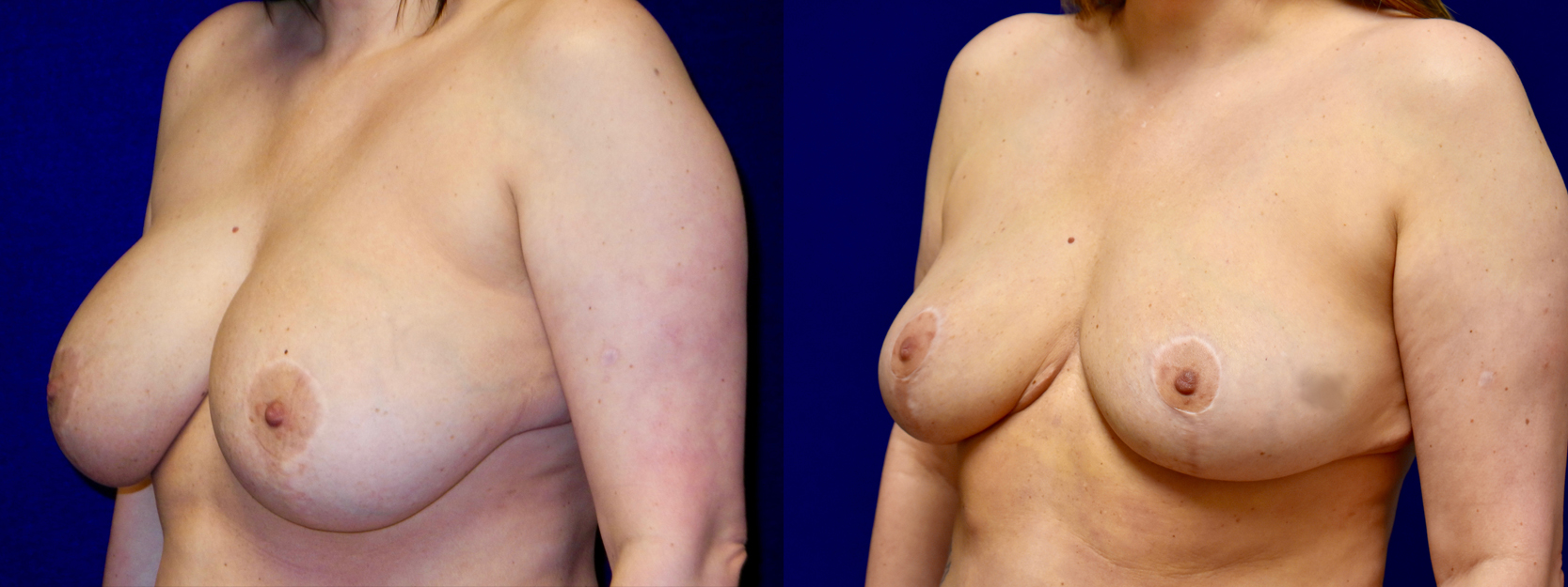 Left 3/4 View - Breast Implant Removal with Reduction and Lift