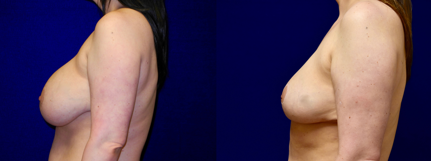 Left Profile View - Breast Implant Removal with Reduction and Lift