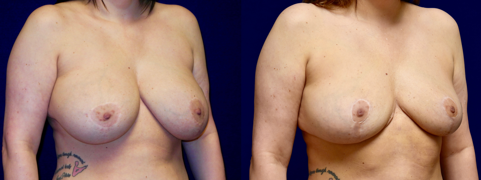 Right 3/4 View - Breast Implant Removal with Reduction and Lift
