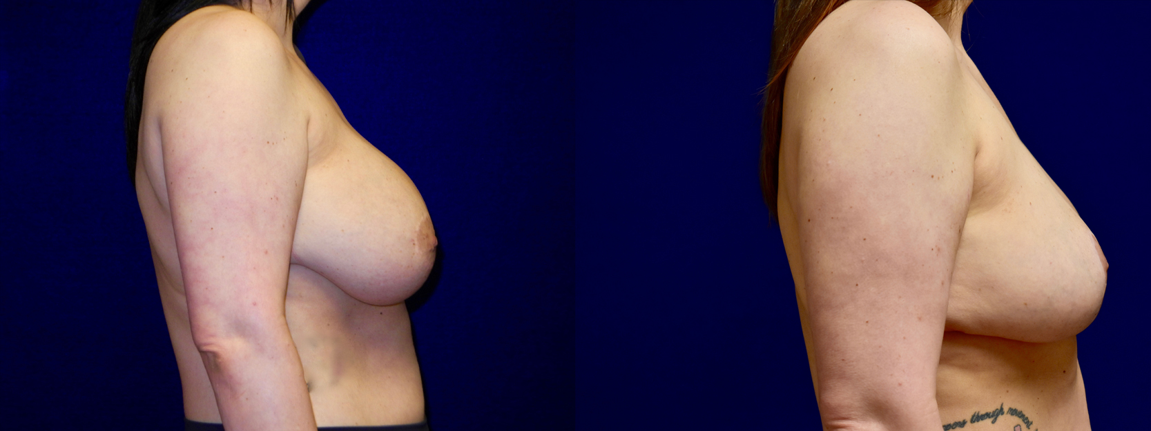 Right Profile View - Breast Implant Removal with Reduction and Lift