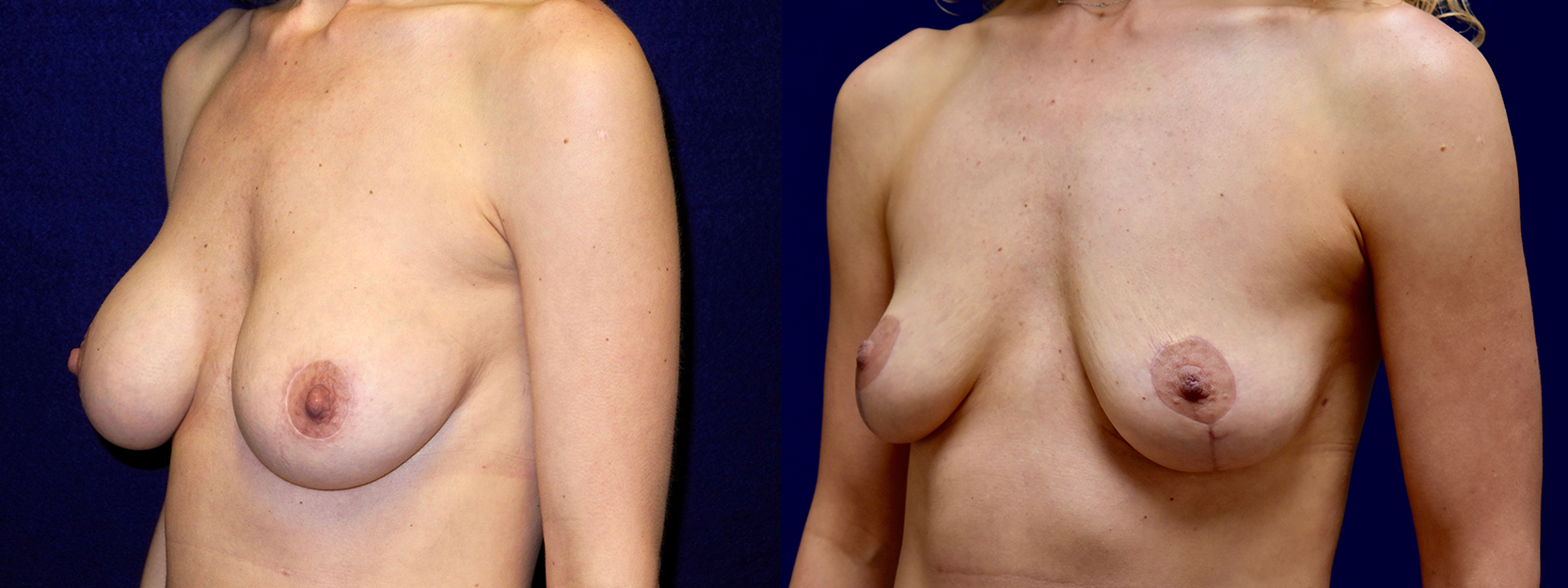 Left 3/4 View - Breast Implant Removal with Breast Lift