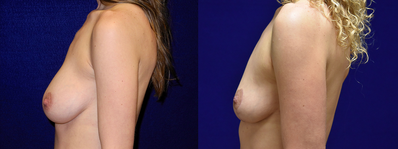 Left Profile View - Breast Implant Removal with Breast Lift