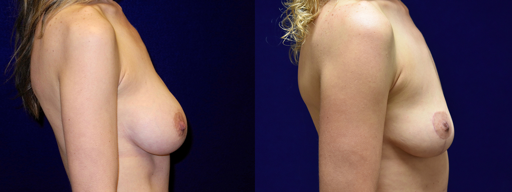 Right Profile View - Breast Implant Removal with Breast Lift