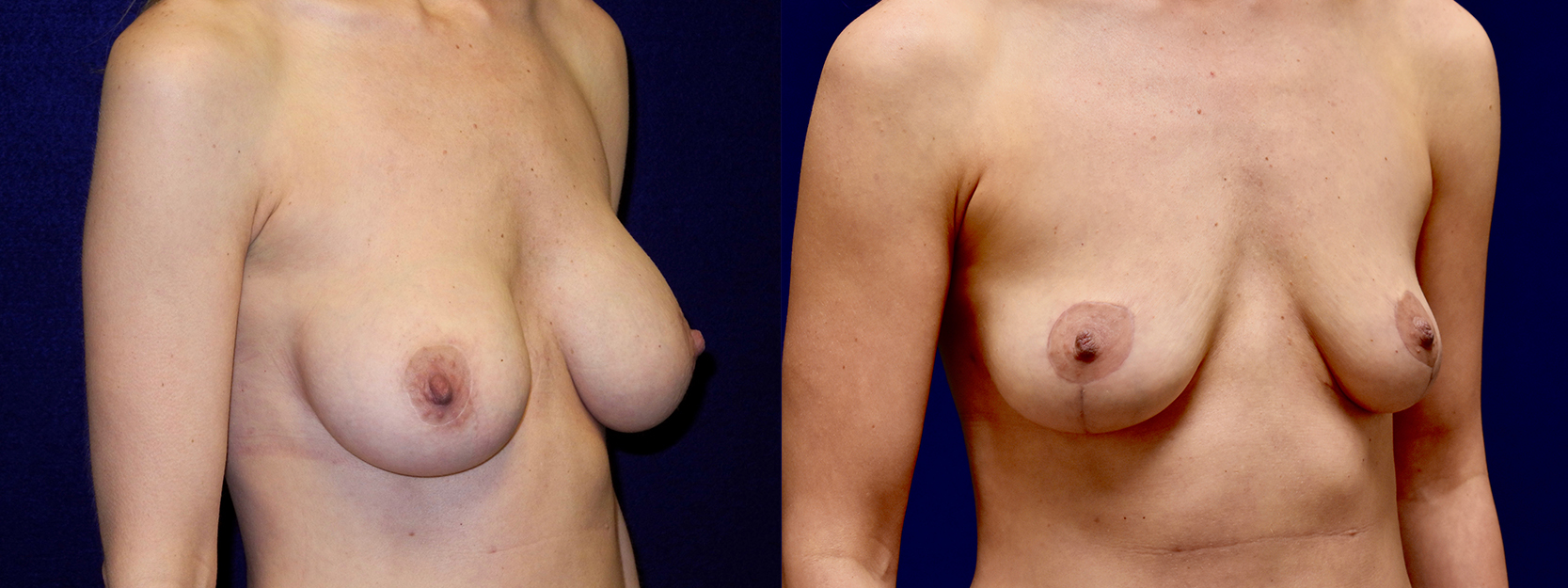 Right 3/4 View - Breast Implant Removal with Breast Lift