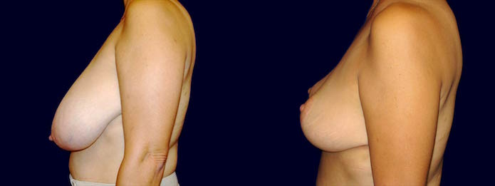 Breast Reduction - 60-year-old Patient