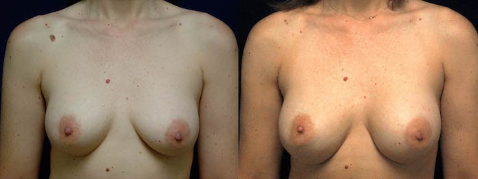 Ruptured Silicone Breast Implant Revision