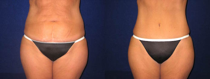 Tummy Tuck Before And After Photos Dallas Fort Worth