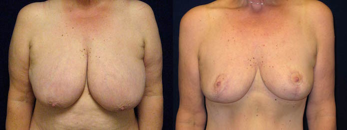Breast Reduction with Breast Lift After Weight Loss