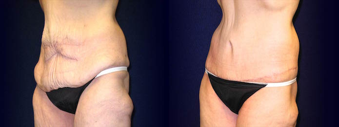 Cirumferential Tummy Tuck After Weight Loss