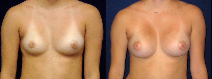 Breast Augmentation to Correct Breast Asymmetry