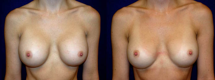 Breast Implant Revision - Saline to Silicone Implants