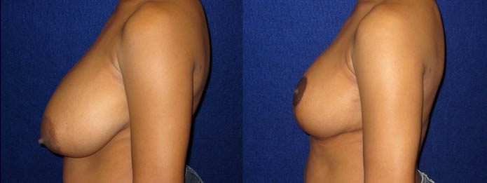 Breast Reduction - DDD-cup to C-cup