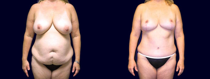Breast Reduction Mastopexy and Tummy Tuck