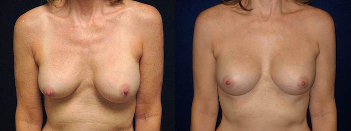 Deflated Saline Breast Implant Revision with Silicone Impant