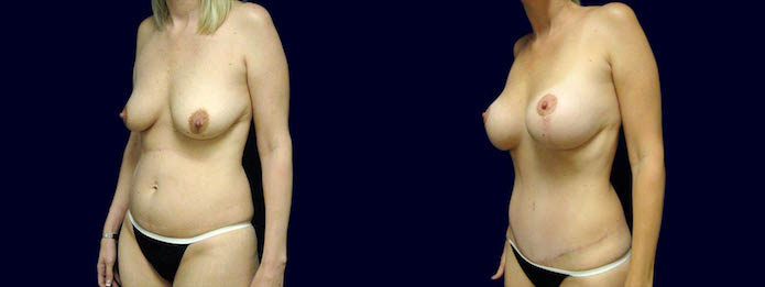 Mommy-plasty with Breast Augmentation, Breast Lift, Liposuction, and Tummy Tuck