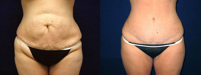 Mommy Makeover with Tummy Tuck and Breast Lift