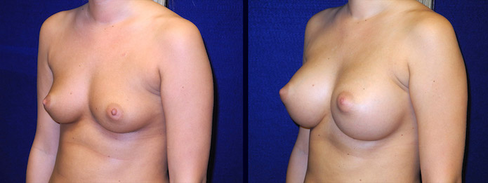 Breast Augmentation - B-cup to Large C-cup