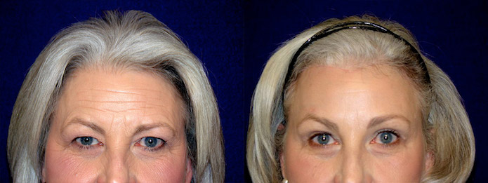 Upper Blepharoplasty with Browlift