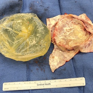 Ruptured silicone implant on the left and a total capsulectomy specimen on the right. The capsule has been opened and is white because it is calcified.
