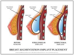 Breast implant placemtent options