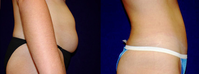 Liposuction Before And After Pictures Dallas Fort Worth