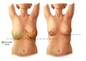 Fate of the nipple in a mastopexy
