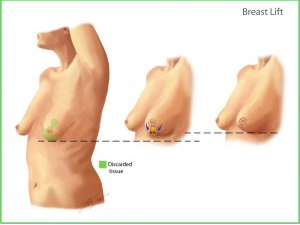 Oncologic breast reconstruction