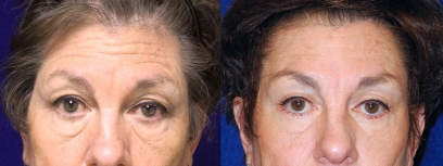 Frontal View - Browlift with Upper & Lower Eyelid Surgery