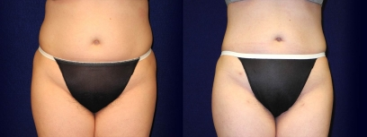 Frontal View - Liposuction