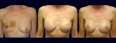 Frontal View - Breast Reconstruction