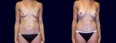 Frontal View - Breast Augmentation and Tummy Tuck