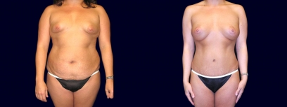 Frontal View - Breast Augmentation with Periareolar Lift & Tummy Tuck