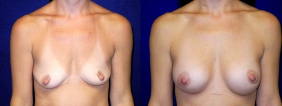 Frontal View - Breast Augmentation with periareolar Lift After Pregnancy with Silicone Implants