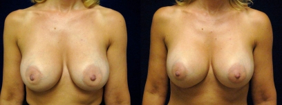 Frontal View - Breast Implant Revision - Silicone Implants