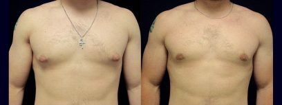 Frontal View - Male Breast Reduction
