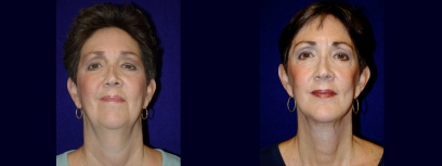 Frontal View - Facelift & Chin Implant