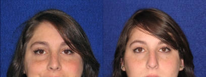 Frontal View - Rhinoplasty