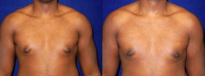 Breast dallas reduction