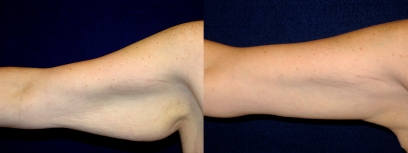 Frontal View - Right Arm - Arm Lift