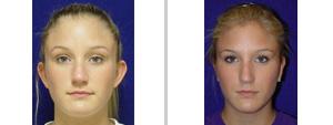 Dallas Ear Surgery