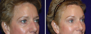 Dallas Eyelid Surgery